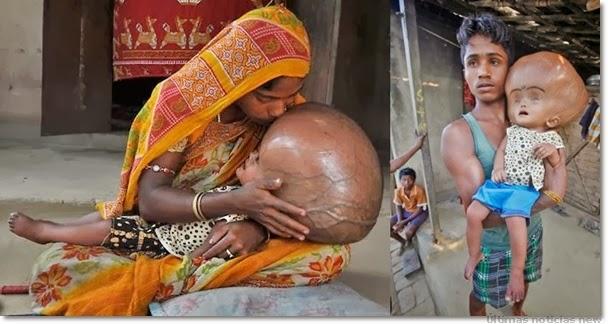 indian-hydrocephalus
