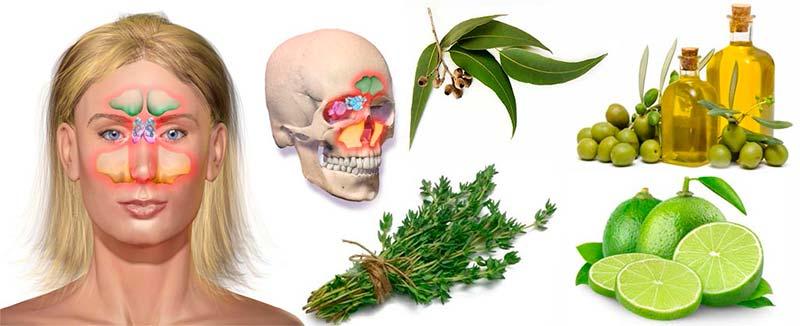 5-remedios-caseros-para-la-sinusitis-1