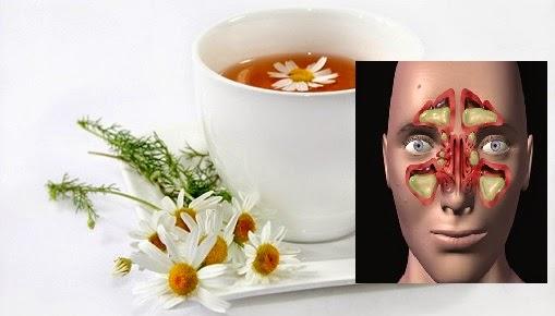 5-remedios-caseros-para-la-sinusitis-6