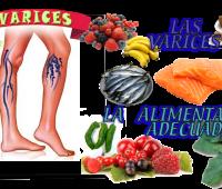 10 Remedios caseros para las varices