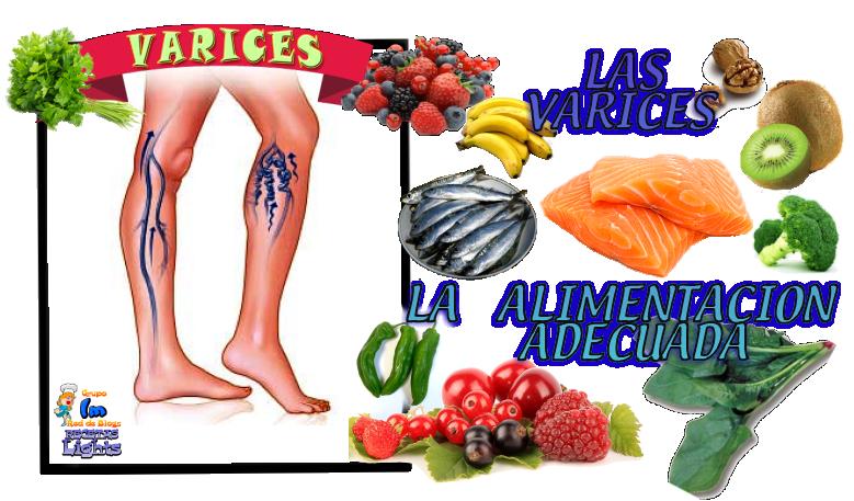 10-remedios-caseros-para-las-varices-10