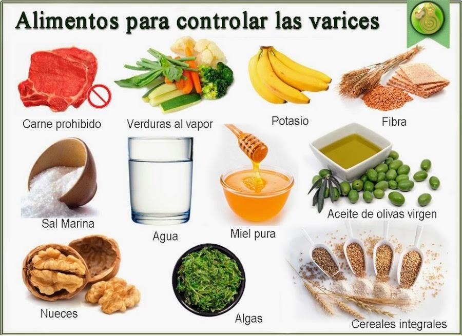 10-remedios-caseros-para-las-varices-2