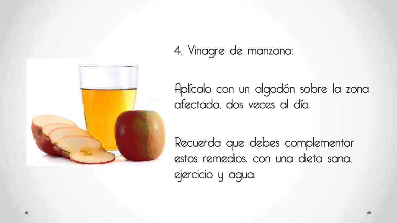 10-remedios-caseros-para-las-varices